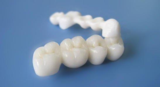 像真牙一樣的假牙 新型材料義齒有望替代烤瓷牙